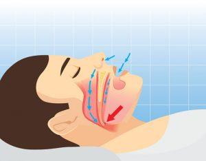 snoring anatomy of the human airway