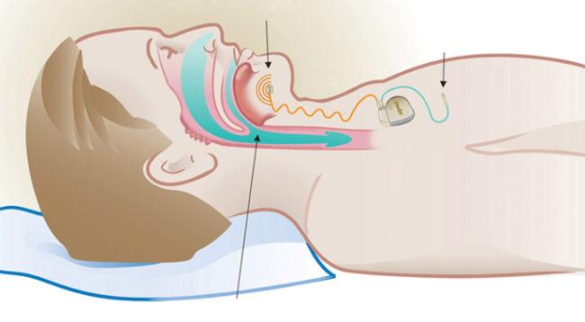 hypoglossal nerve stimulation
